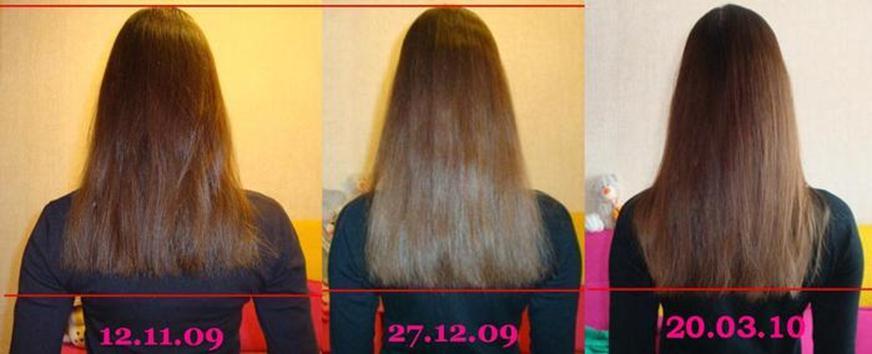маска с димексидом для волос отзывы